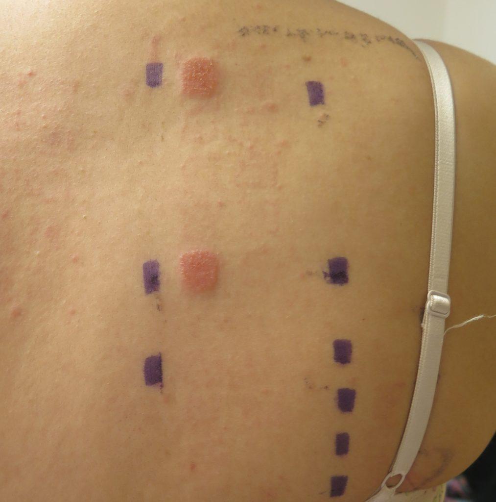 epikutantestad rygg